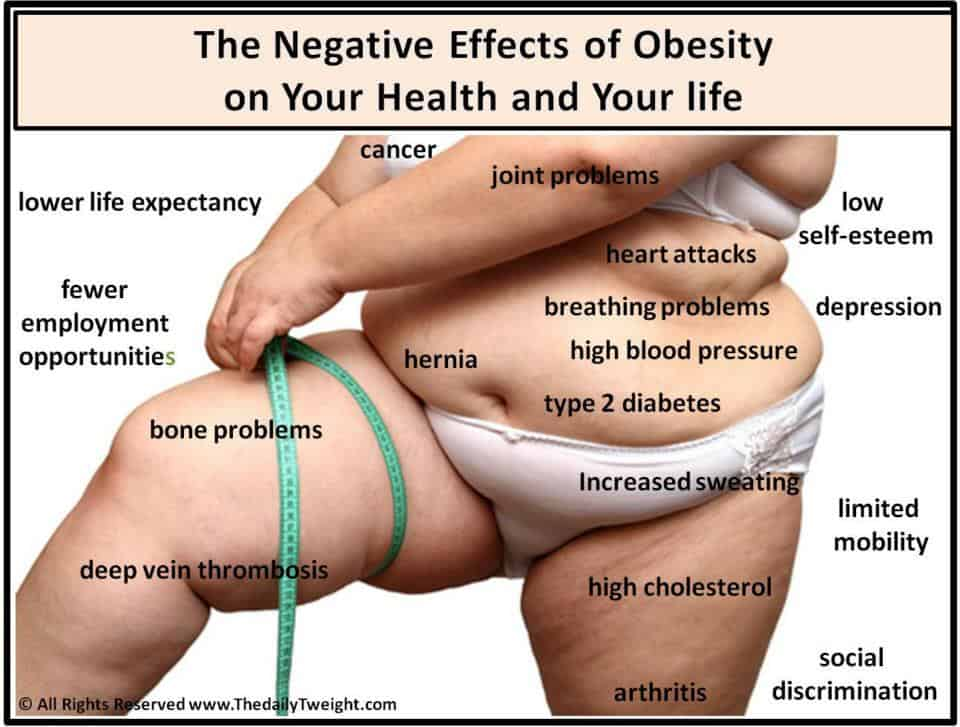 high blood pressure vs obesity Hypertension (htn or ht), also known as high blood pressure (hbp), is a long-term medical condition in which the blood pressure in the arteries is persistently elevated high blood pressure usually does not cause symptoms.